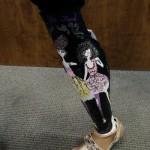 beautiful new prosthetic